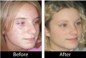 Acne No More results