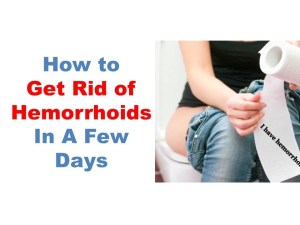 remove hemorrhoids plan
